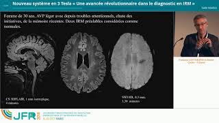 Philips nouveau système en 3 Tesla : une avancée majeure dans le diagnostic en IRM
