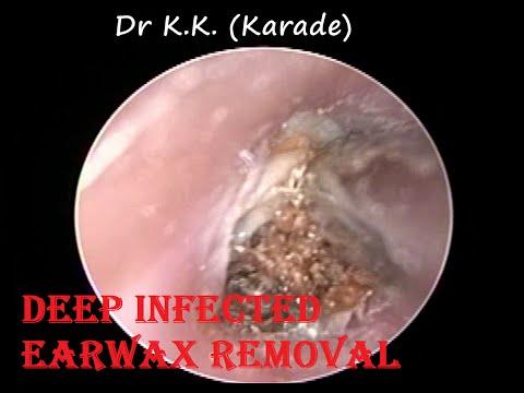 Suffering from Ear Blockage ,Ear Pain since last 3 month - Got relief after Procedure