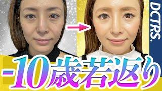 【美容外科Tuber】廣松直樹の若返り術!ここに究極の美魔女が誕生する!【衝撃】