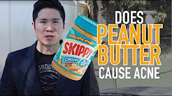 hqdefault - Does Peanut Butter Give You Pimples