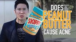hqdefault - Peanut Butter Cure Acne