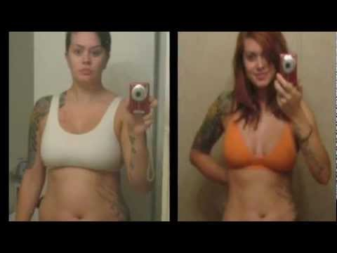 Sandoz-bupropion sr 150 mg and weight loss picture 10