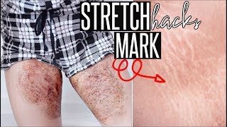 HOW TO GET RID OF STRETCH MARKS Naturally + Fast | DIY Stretch Mark Removal