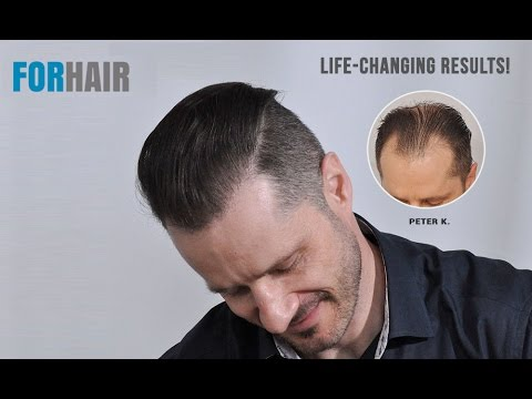 FUE Hair Transplant Result - Patient Review - 3957 Grafts - Forhair
