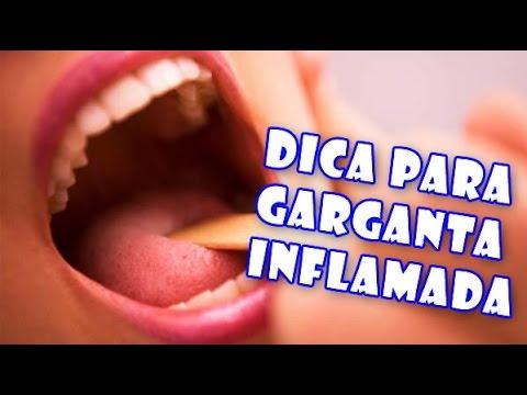 Remedios garganta inflamada e irritada