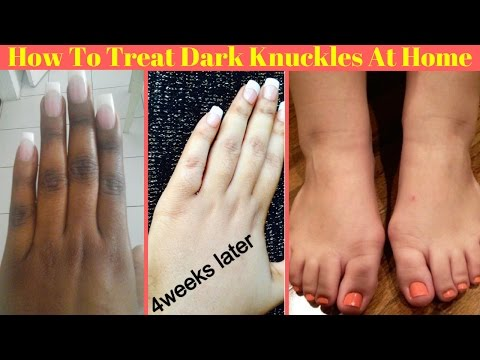 How To Get Rid Of Dark Knuckles Easily At Home