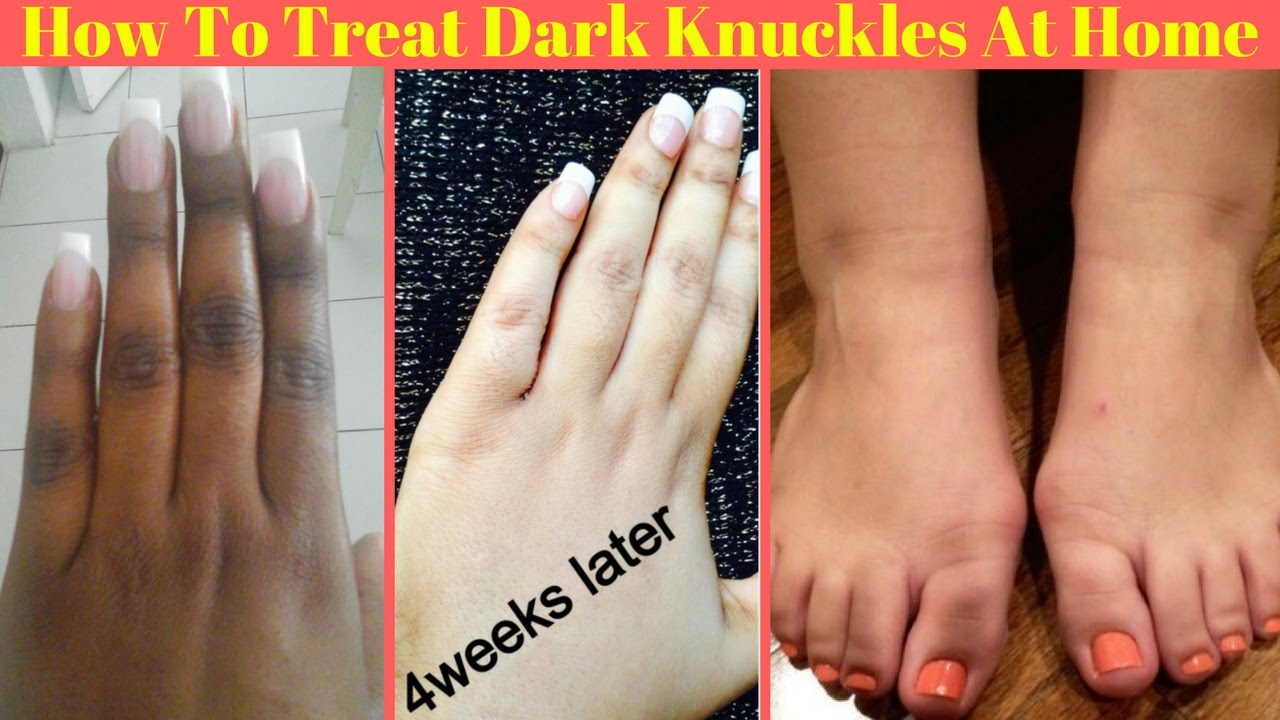 Image result for How Lighten Dark Knuckles Naturally Without Using Chemicals