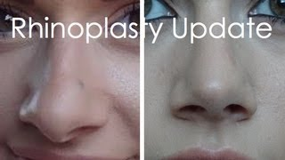 Rhinoplasty/Septoplasty Update | 2 Months Post-op
