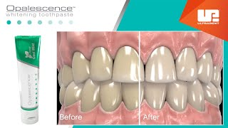 How Opalescence™ Whitening Toothpaste Works | The Leader in Whitening