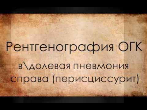 Перисциссурит - Медицинский словарь - Энциклопедии & Словари