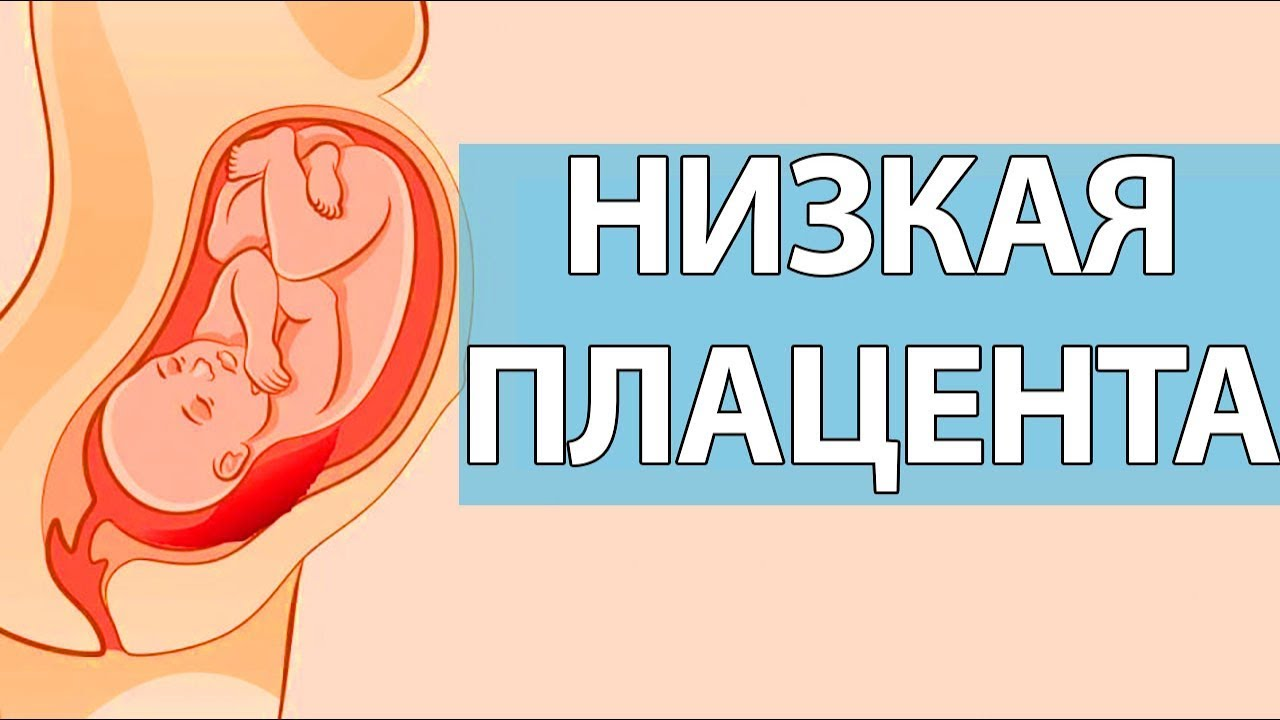 Чем грозит низкое расположение плаценты