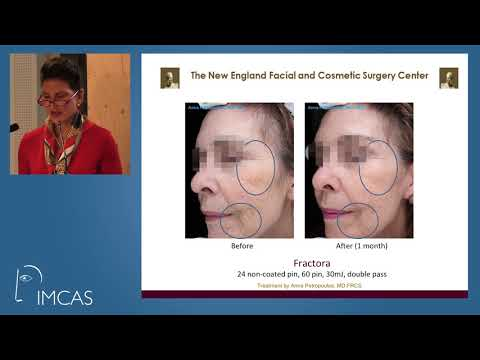 Rejuvenation with Fractional & Injectable RF - RadioFrequency