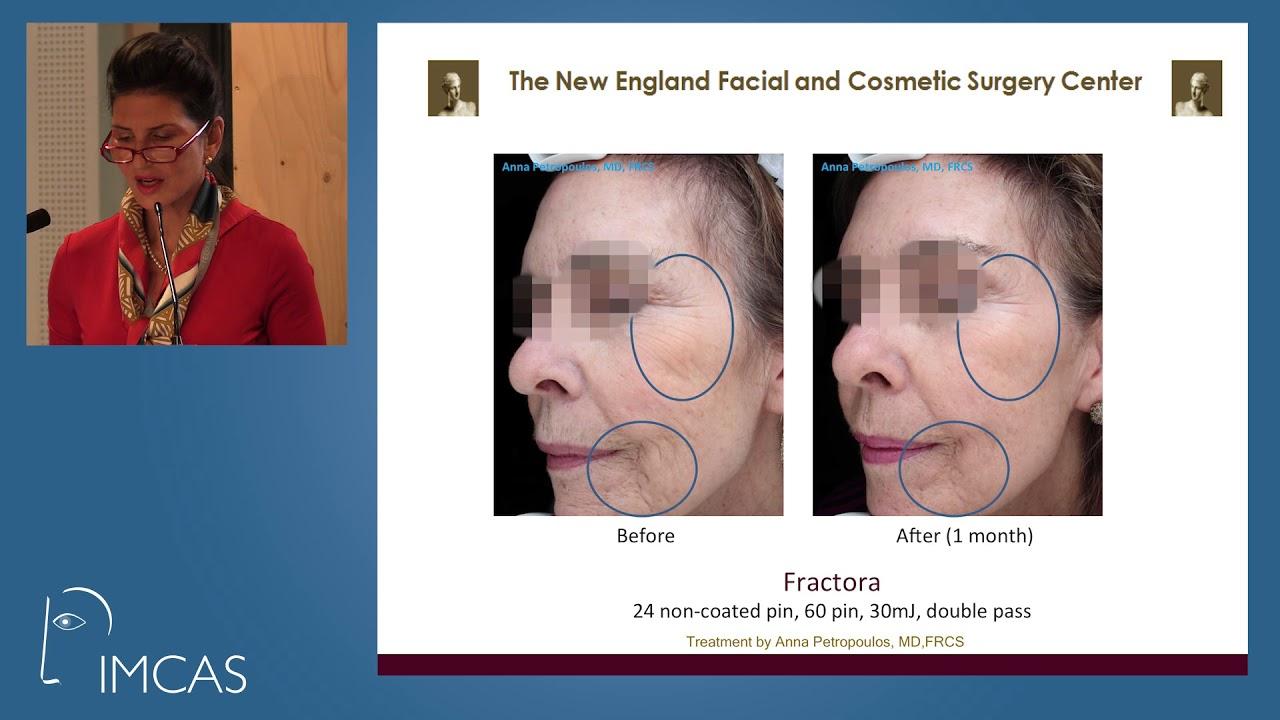 FaceTite | Skin Tightening Boston | Danvers MA