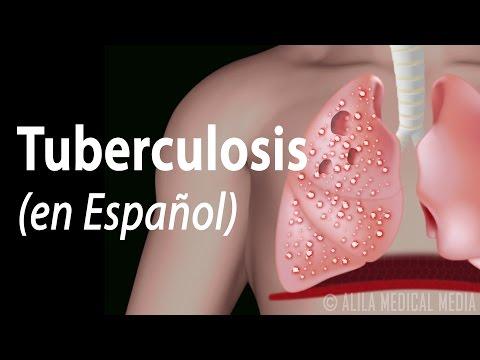 Tuberculosis: Progresión de la Enfermedad, Animación. Alila Medical Media Español.
