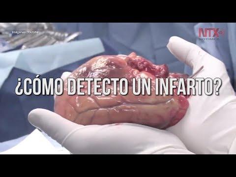 Hipertensión arterial, principal causa de muerte en México..