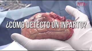 Principal presión arterial