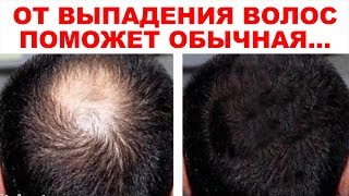 видео 17 эффективных натуральных масок для ускорения роста волос