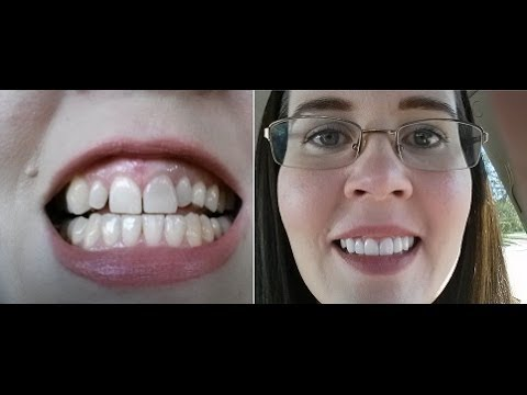 Getting Porcelain Crowns Part 3 The Final Result Youtube