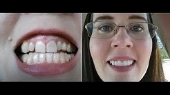 Getting Porcelain Crowns - Part 3:  The Final Result