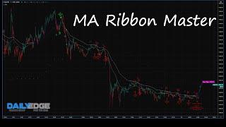 MA Ribbon Master Strategy