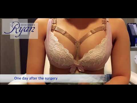 Interview after breast surgery(augmentation)