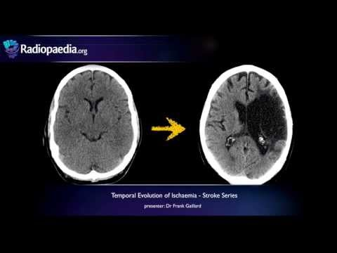 Stroke: Evolution from acute to chronic infarction - radiology video tutorial (CT, MRI) thumbnail