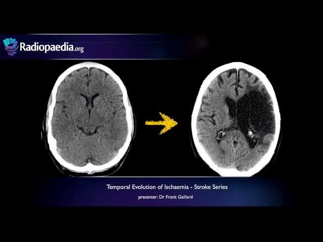 sequence-specific mri imaging findings that are useful in dating ischemic stroke