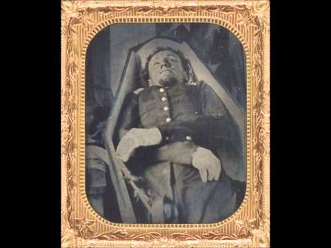 Rare Civil War Postmortem Photographs Of Dead Soldiers (1860's)