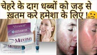 Baixar Mederma Cream Full Review | Best Cream for Scars