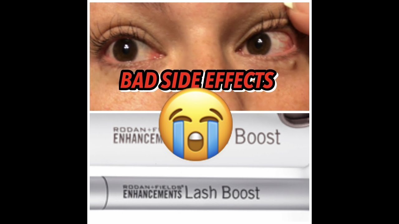 cabc73df7ba Women Are Suing Rodan + Fields Over Side Effects From One Of Its Most  Popular Products
