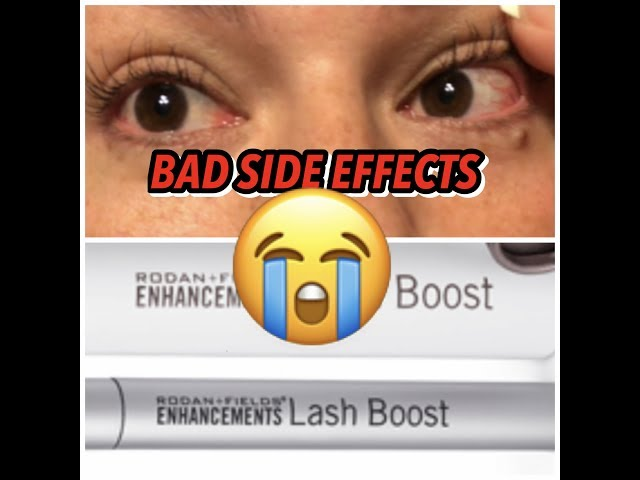 7202c28ff2c Women Are Suing Rodan + Fields Over Side Effects From One Of Its Most  Popular Products