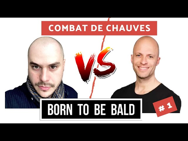 Vaincre sa Calvitie après une Greffe de Cheveux Ratée : Romain Plagnard - Born To Be Bald #1