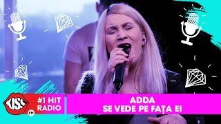 Adda - Se vede pe fata ei #Mireasa (Live Kiss FM)