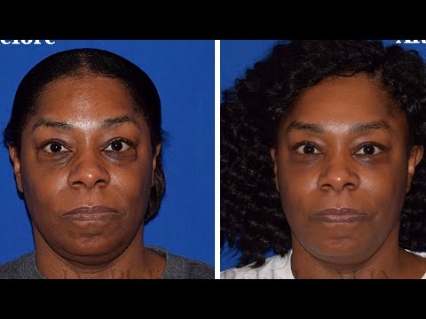 Stunning Lower Blepharoplasty Testimony & Transformation