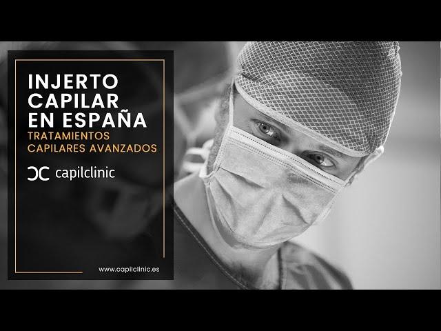 Injerto Capilar en Barcelona con Capilclinic