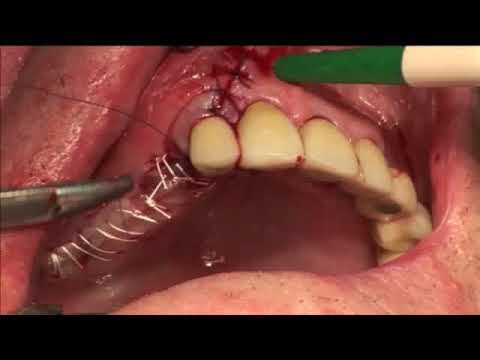 Full Implant sugery and restoration in the upper right molar teeth