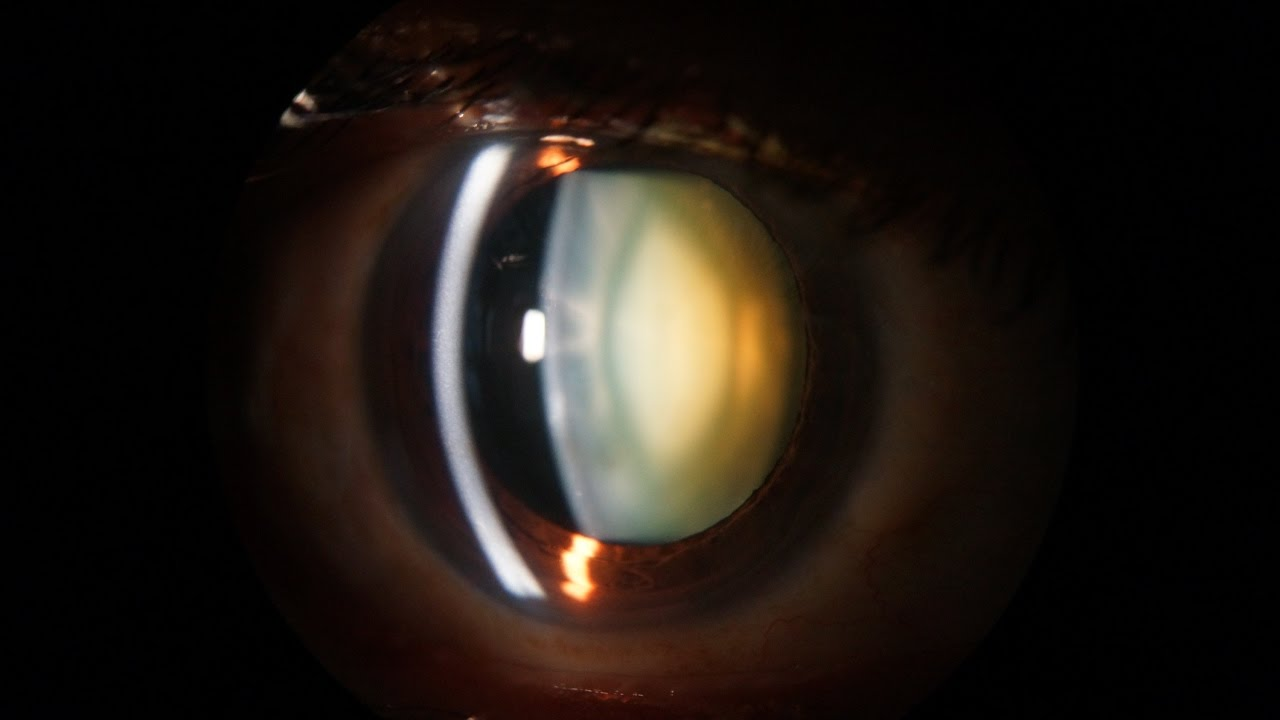 Slit Lamp examination of the anterior segment of the eye - YouTube