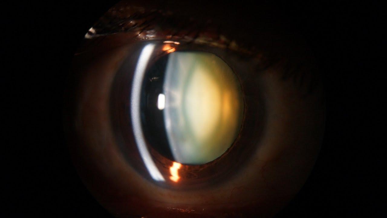 Slit Lamp examination of the anterior segment of the eye ...