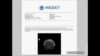 Tutorial: Use Radiology Reports with Medical Records? // drchrono EHR