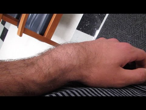 I BROKE MY ARM!! (WARNING: GRAPHICAL)