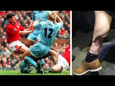Most Shocking Injuries XI | Cech, Ramsey & Cisse!