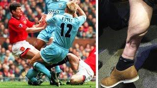 Most Shocking Injuries XI   Cech, Ramsey & Cisse!