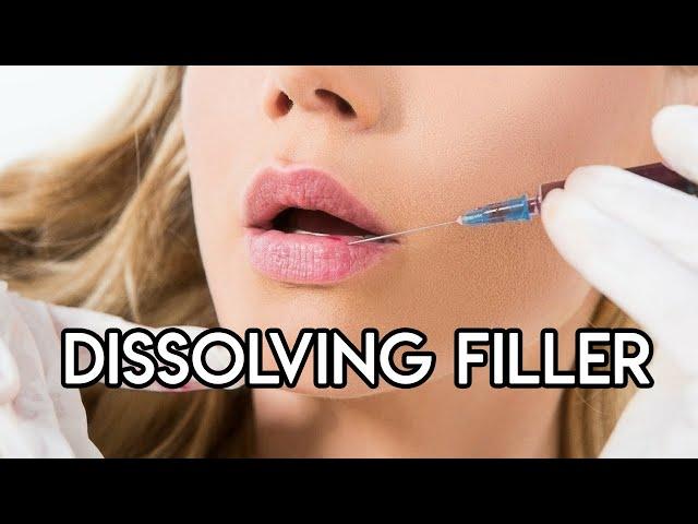 Dissolving Filler