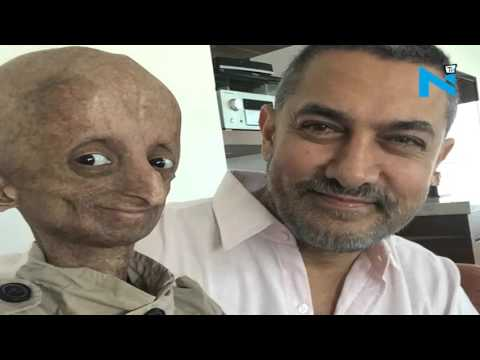Nihal Bitla, teenage face of Progeria in India dies