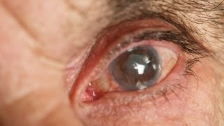 Eye Conditions, Floaters And Flashes, Get Rid Of Eye Floaters, Floaters And Flashes In Eye