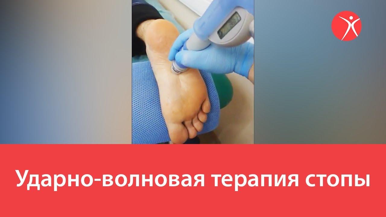 Ударно-волновая терапия стоп