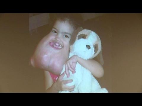 Tumormeisje onherkenbaar na operatie