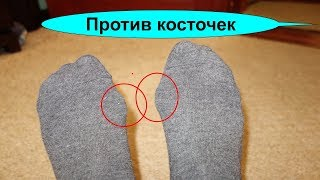 Косточка на большом пальце ноги как уменьшить эту болящую шишку