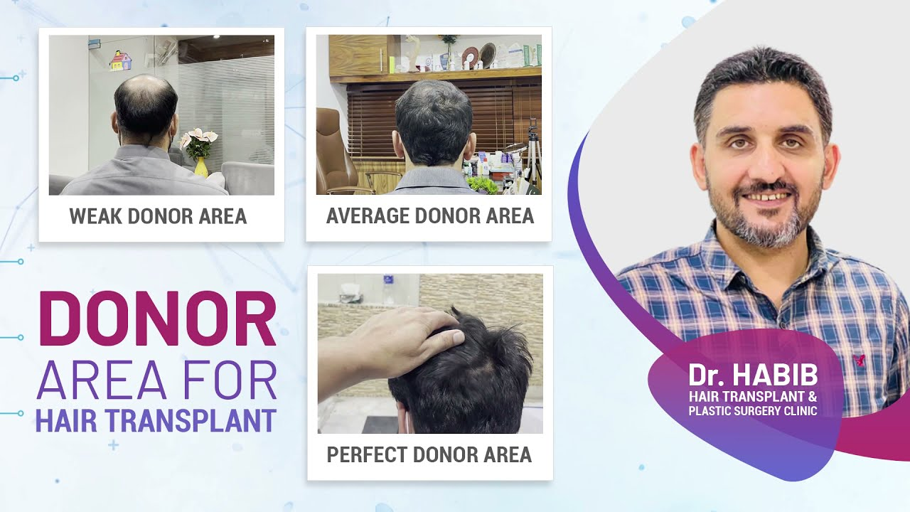 Download Hows your donor hairs/compare your own