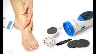 Что делать с натоптышами на ногах